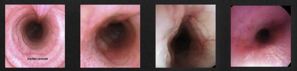 Trachea normale e Ipoplasia Tracheale a confronto